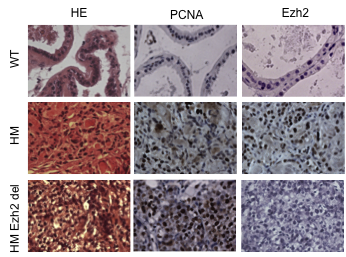 Figure 2: Immunohistochemistry showing the expression of Ezh2 and PCNA in mouse prostate of animal either wild type (WT) or developing a cancer consequently to the expression of an oncogene (HM).