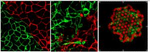 Figure 2: The stability of epithelial cells was investigated through junction fluctuations, turnover dynamics, and the mechanosensitivity of E-cadherin endocytosis. Bi-color junctions made with fluorescent E-cadherins reveal the dynamic cross-talk across junctions. 3D photopolymerized microstructures were designed to control neighborhood patterns and to study the rules of mutual de/stabilization upon photoinduced genetic perturbations. Instabilities.