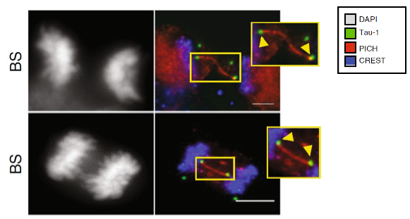 Representative immunofluorescence (IF) z‐projection images showing paired Tau foci (green) linked by PICH-positive UFBs in Bloom's syndrome anaphase cells. Scale bar: 5 µm