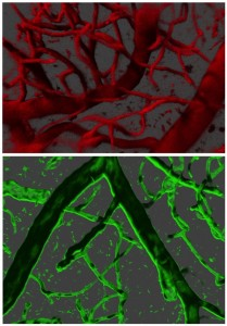 Multi-photon imaging of the brain cortex vasculature, blood flow (top) and endothelial cells (bottom)
